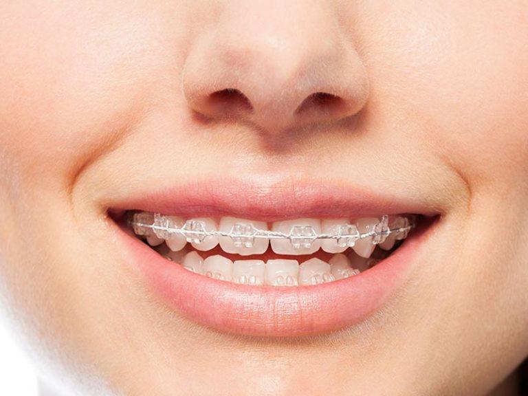 Teeth Straightening - Clear Metal Braces