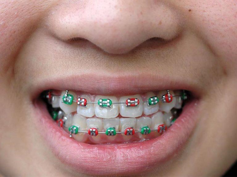 Teeth Straightening - Coloured Metal Braces